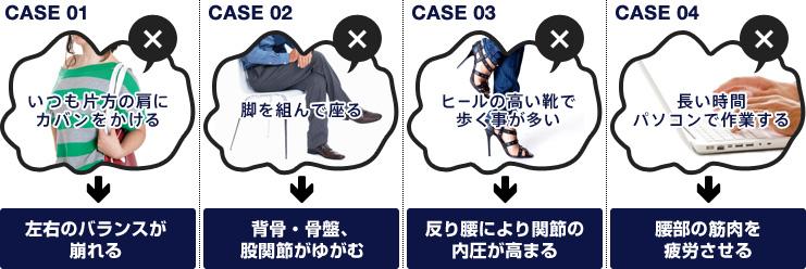アーユルチェアは姿勢矯正で腰痛を改善する椅子